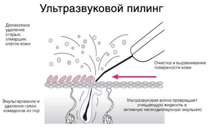 Ультразвуковая чистка кожи в Минске